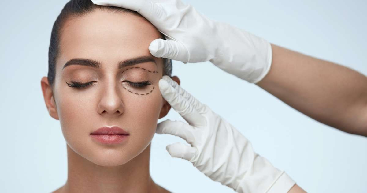 What-Is-a-Blepharoplasty