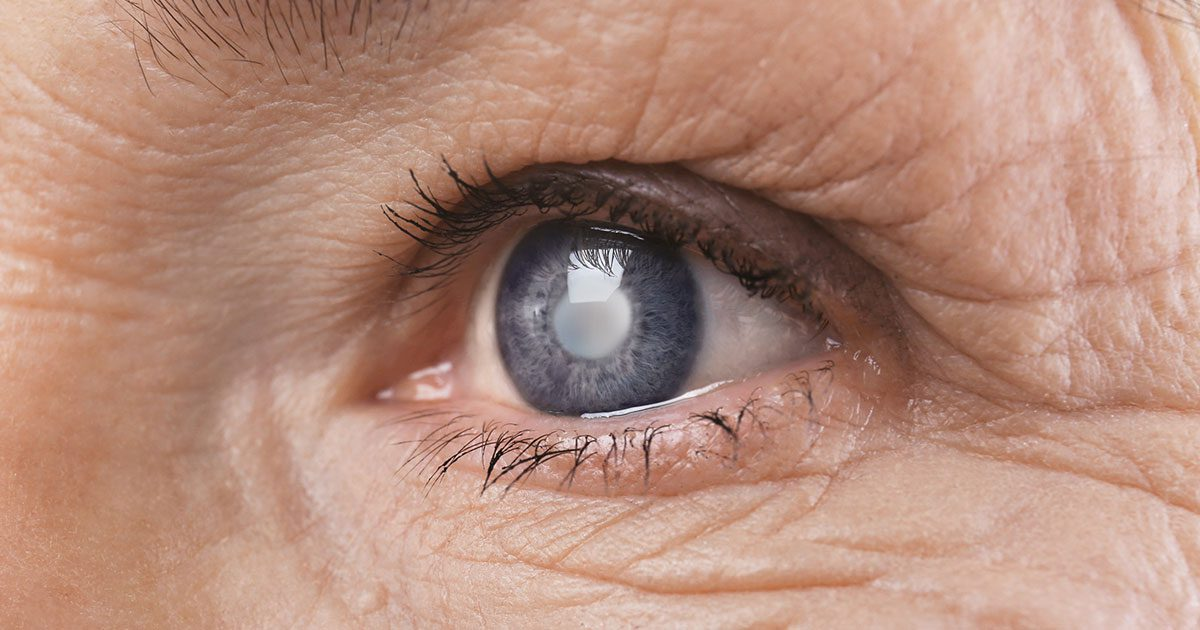 Elderly Woman With Cataract