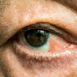 Pterygium Causes, Symptoms, and Treatment