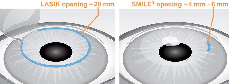 LASIK vs. SMILE Incision