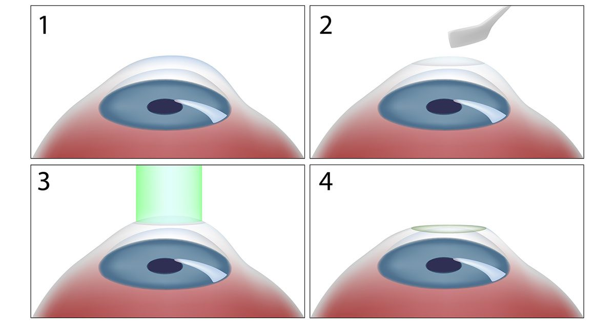 PRK Eye Surgery Steps